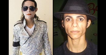 Brazilian Bleaches His Skin To Look Like Michael Jackson