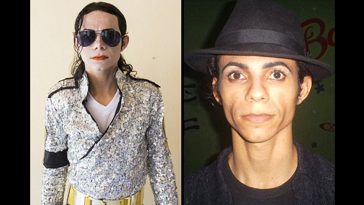 Brazilian Bleaches his Skin to be MJ
